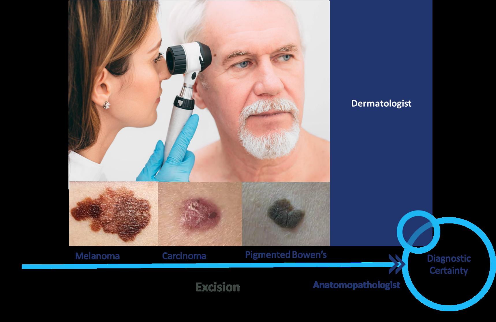 skin cancer diagnosis